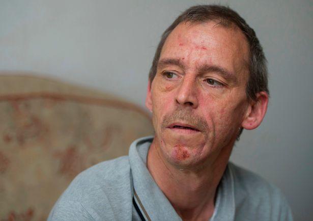 Δείτε την ιστορία του άνδρα που τρία χρόνια τον έτρωγαν ψύλλοι (pics)