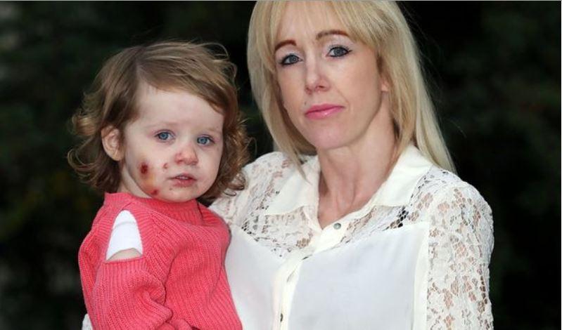 Τρομακτικό: Δάγκωσαν 17 μηνών κοριτσάκι σε παιδότοπο