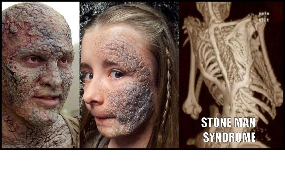Stone Man: Το παράξενο σύνδρομο που σε μεταμορφώνει σε πέτρα (vid)