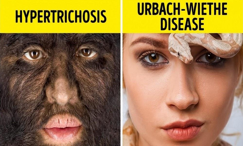Παράξενες ασθένειες που κανείς δεν πιστεύει ότι υπάρχουν