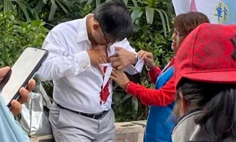 Σοκ στο Χονγκ Κονγκ: Μαχαίρωσαν βουλευτή στο δρόμο (vid)
