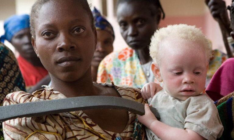 13 Ιουνίου: Διεθνής Ημέρα Ευαισθητοποίησης για τη Λευκοπάθεια