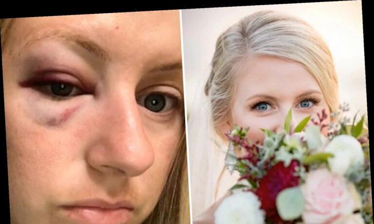 Χαμός σε γάμο – Η νύφη κουτούλησε τον κουμπάρο!