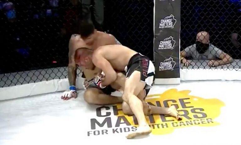 ΜΜΑ: Mαχητής χάνει το δάχτυλό του κατά τη διάρκεια του αγώνα (ΣΚΛΗΡΕΣ ΕΙΚΟΝΕΣ)
