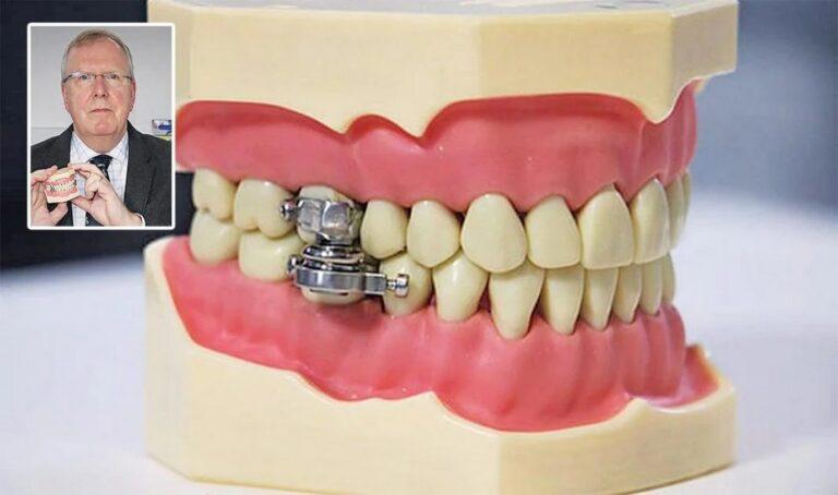 Μεσαιωνική συσκευή κλειδώνει το στόμα των παχύσαρκων