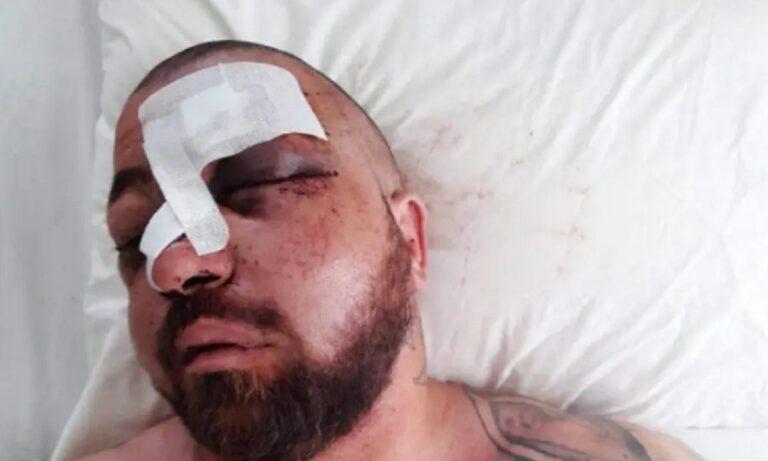 Μύκονος: Το video από το πάρτι που κατέληξε στον ξυλοδαρμό του σωματοφύλακα