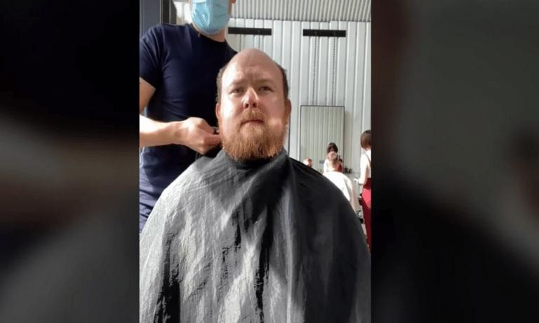 Viral: Απίστευτη αντίδραση άνδρα που απέκτησε ξανά μαλλιά μετά από 10 χρόνια! (vid)