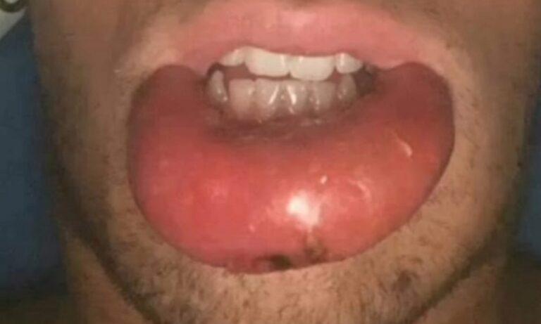 Αγνώριστος με αυτά τα χείλια – Τι συνέβη στον διάσημο Ελληνα;
