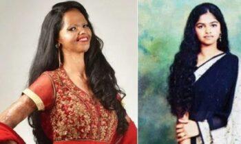 Επίθεση με οξύ στο πρόσωπο: Η Ινδή που πήρε τη ζωή της πίσω και έγινε σύμβολο ελπίδας