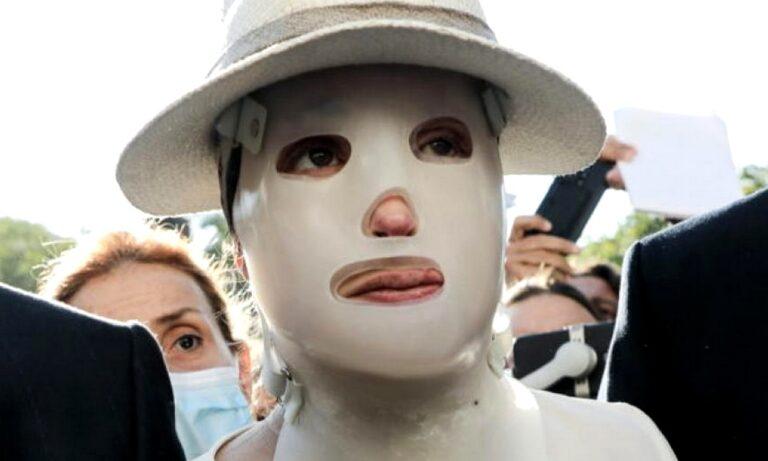 Βιτριόλι: Τι είναι η ειδική μάσκα που φοράει η Ιωάννα Παλιοσπύρου