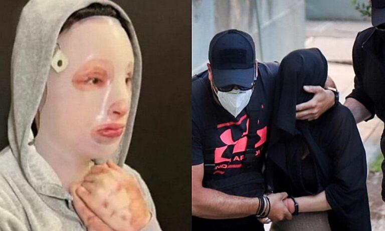 Επίθεση με βιτριόλι: Ξεκινά σήμερα η δίκη – Η Ιωάννα απέναντι στη γυναίκα που της κατέστρεψε τη ζωή