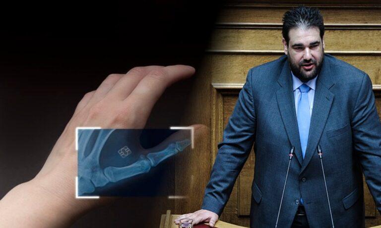 Σοκαριστική δήλωση από τον υφυπουργό Θεόδωρο Λιβάνιο: «Θα τσιπάρουμε πρώτα τα ζώα και μετά τους ανθρώπους»!